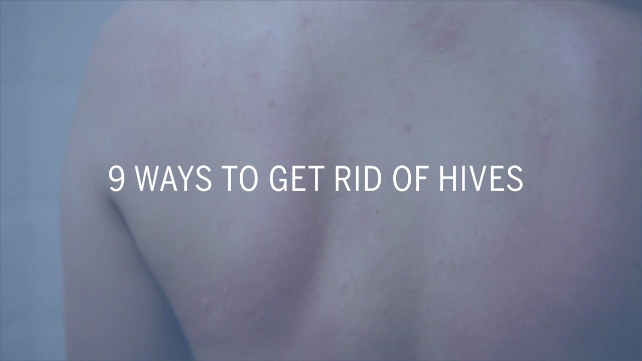5 Causes Of Hives You Wouldn T Expect Health Com