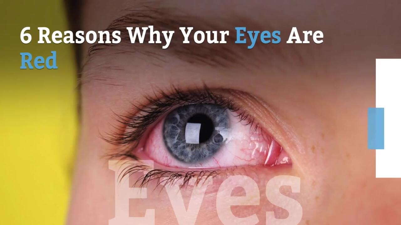 Why Eyes Are Red and How To Get Rid of Bloodshot Eyes   Health.com