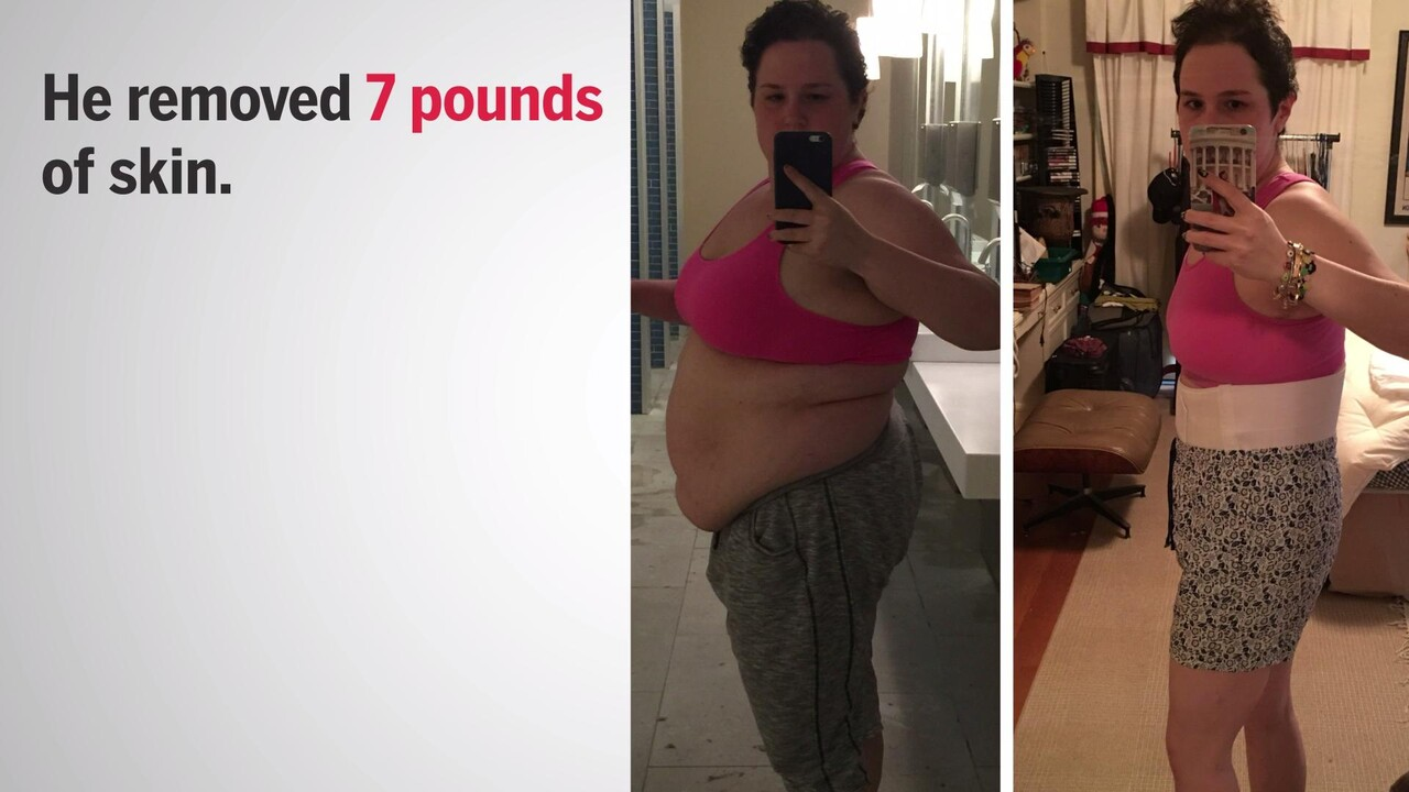 What It S Like To Have Excess Skin Removal After Bariatric Surgery Health Com