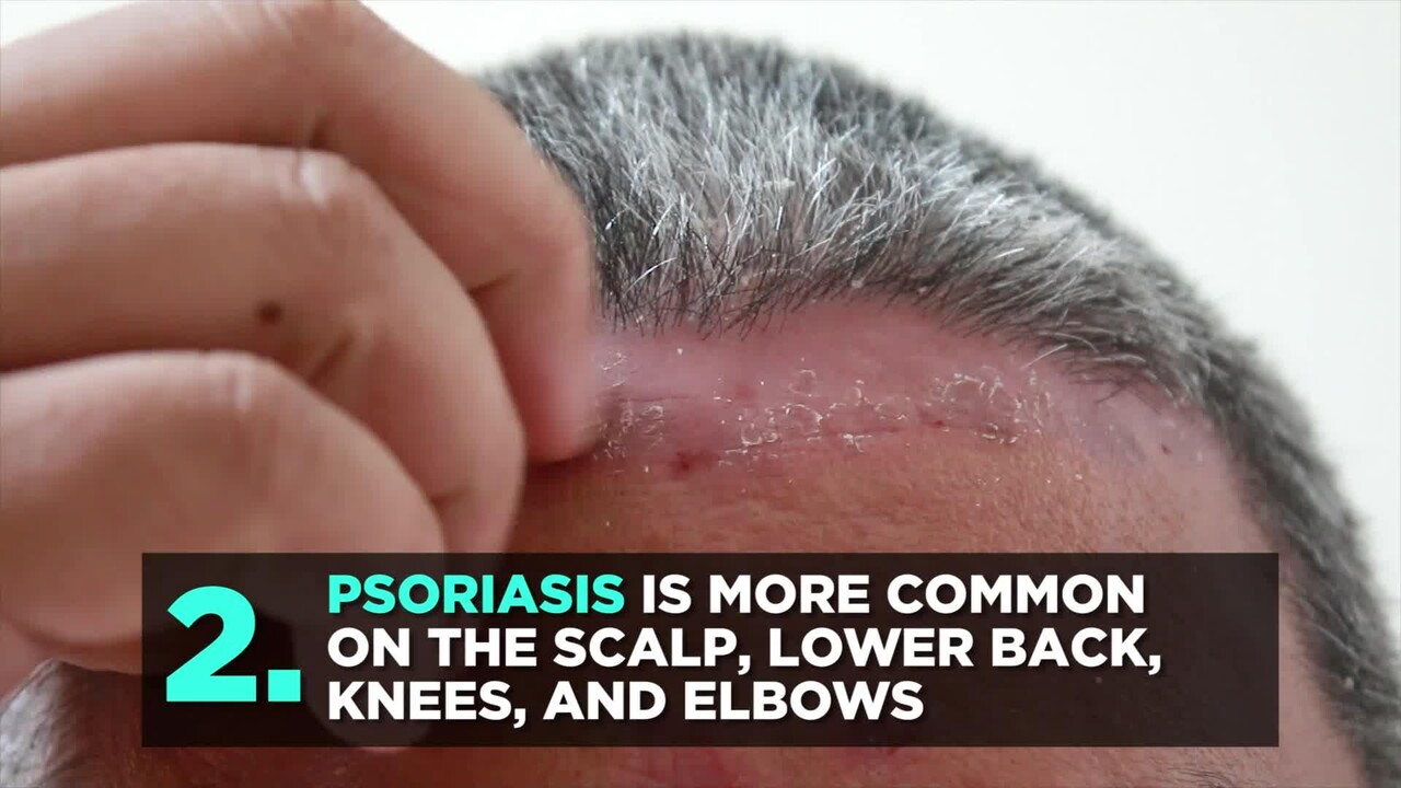 What Is Erythrodermic Psoriasis? Dermatologists Explain