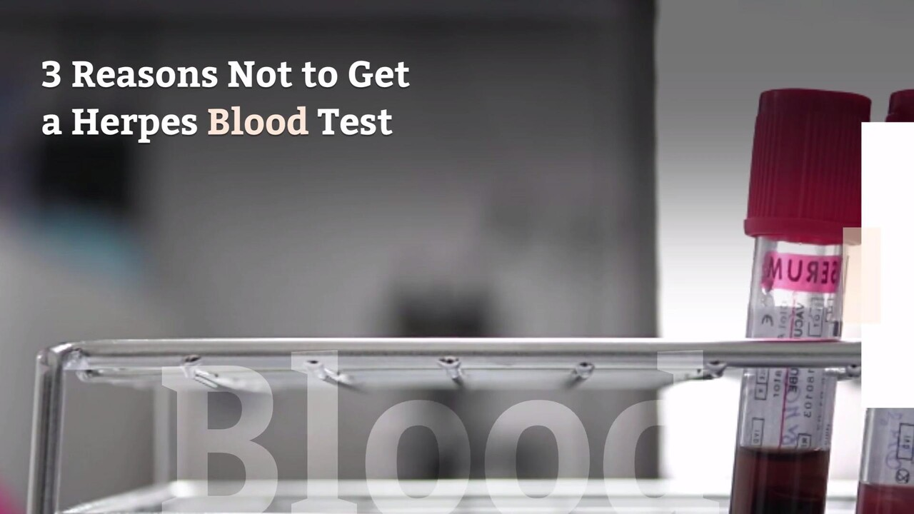 How Long Does It Take To Get A Blood Test Back For Herpes