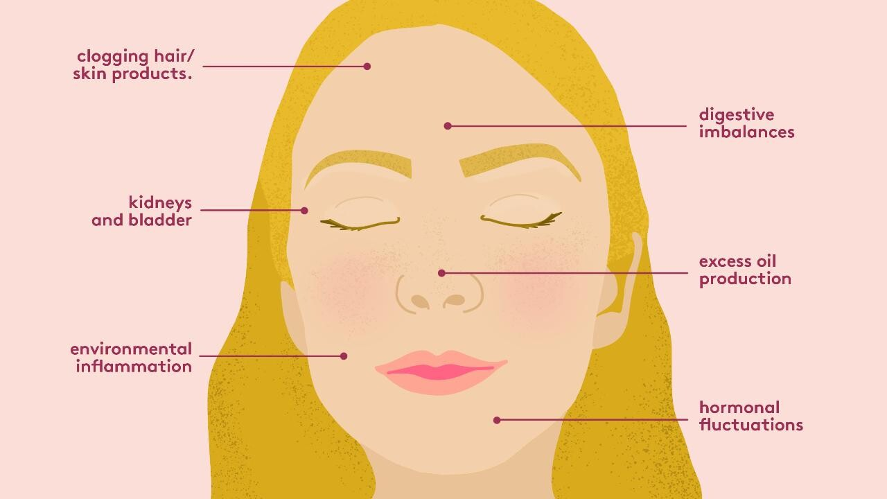 Acne Face Mapping What The Breakouts On Your Face Are Telling You Real Simple