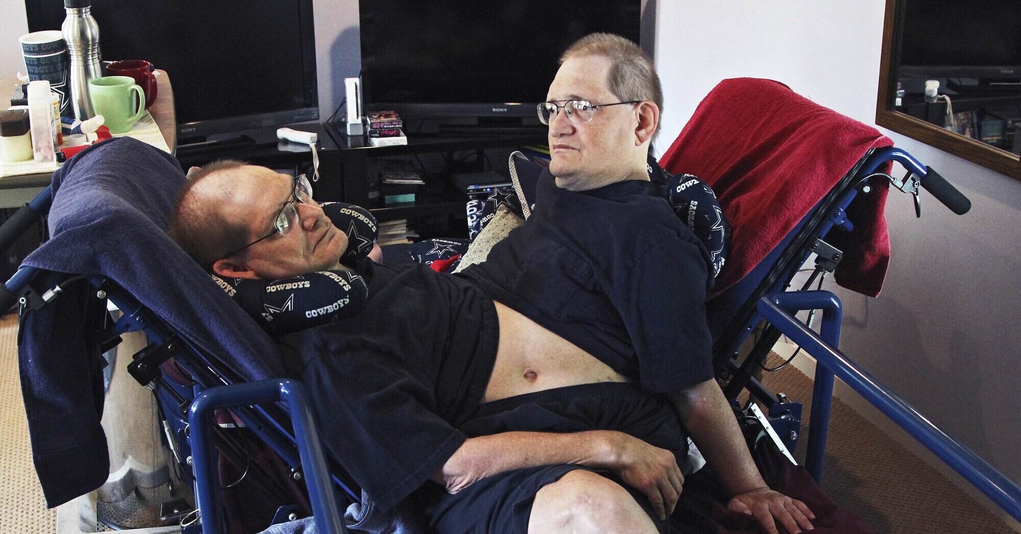Longest-Surviving Conjoined Twins Die at 68: 'They Couldn't Ask for Anything More,' Says Brother