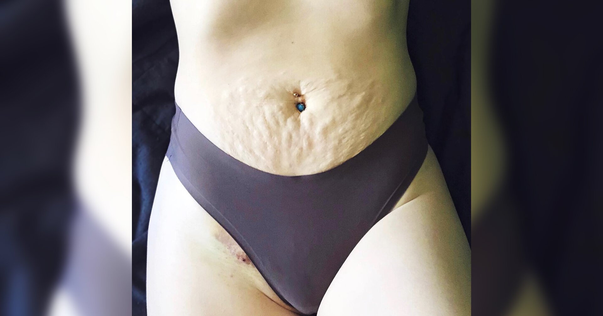 This Mom Shared a Revealing Photo of Her Bikini-Line Scar for a Powerful Reason