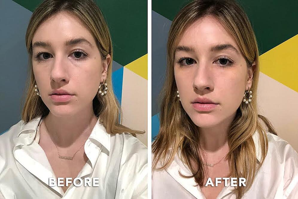 Is This The Best Eye Cream Before And After Photos Real Simple