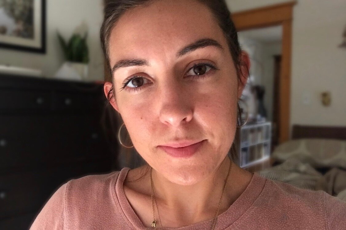 I Tried Frownies To Get Rid Of My Forehead Wrinkle Hellogiggles