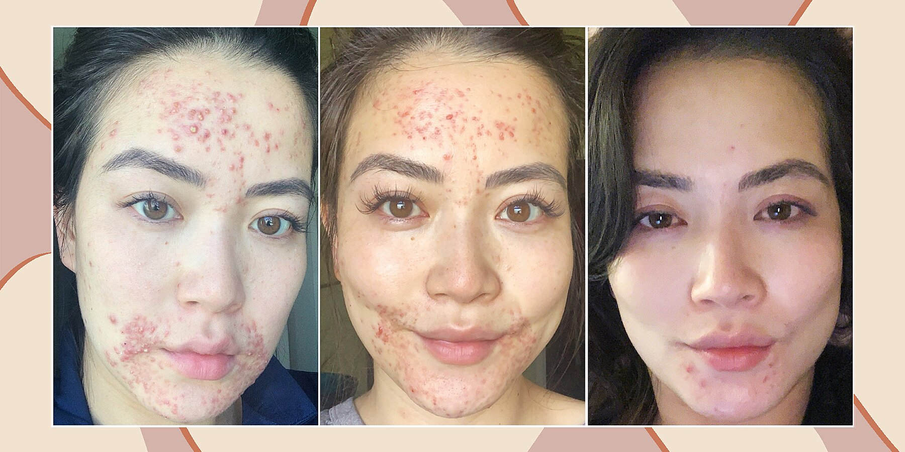 Here's How This TV Anchor Cleared Her Skin of Acne