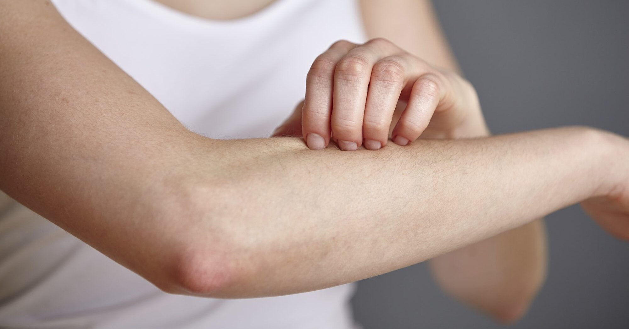 Itchy Skin? Watch Out for These 7 Surprising Culprits That Make Eczema Worse