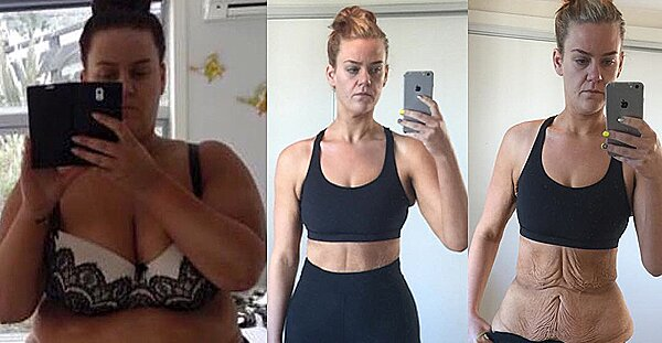 Makeup Artist Who Shared 194-Lb. Weight Loss on Social Media Gets Skin Surgery