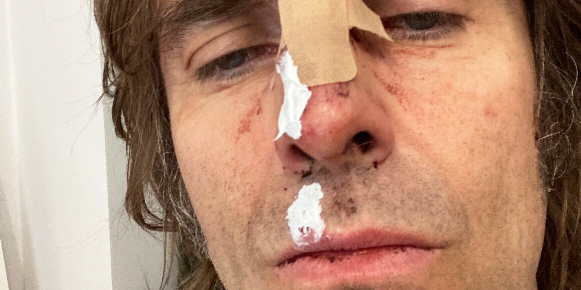 Liam Gallagher Says He Injured His Face After Falling Out of a Helicopter After Festival: 'All Good'.jpg
