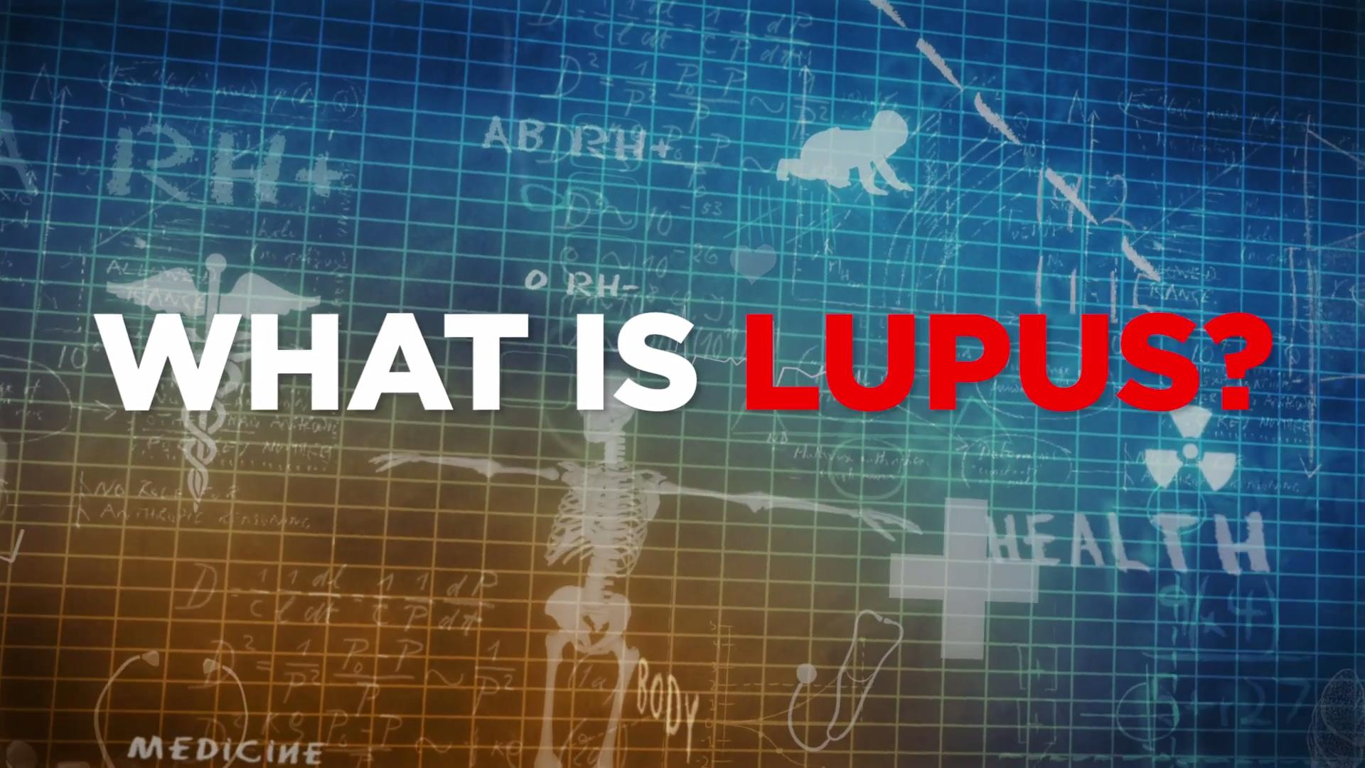 You have lupus.