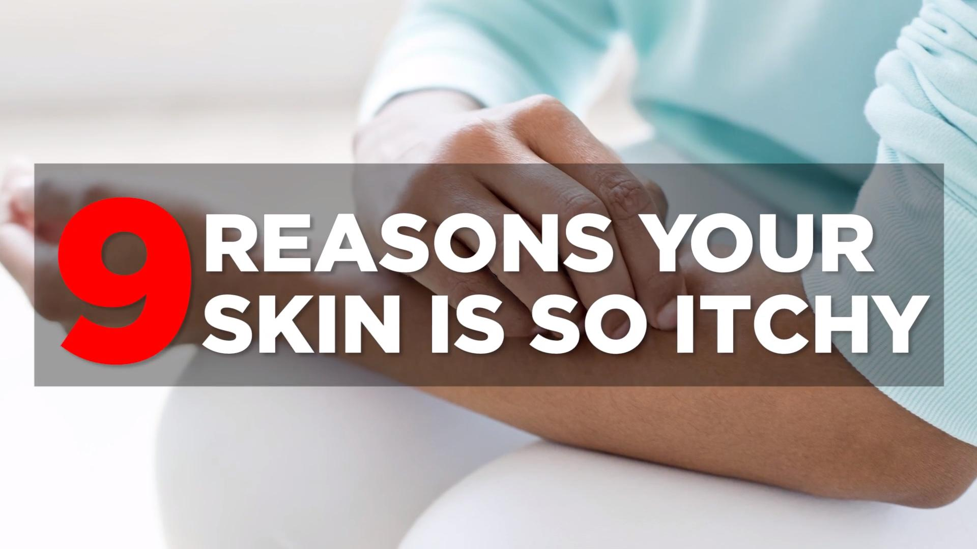 What's causing your itchy skin?