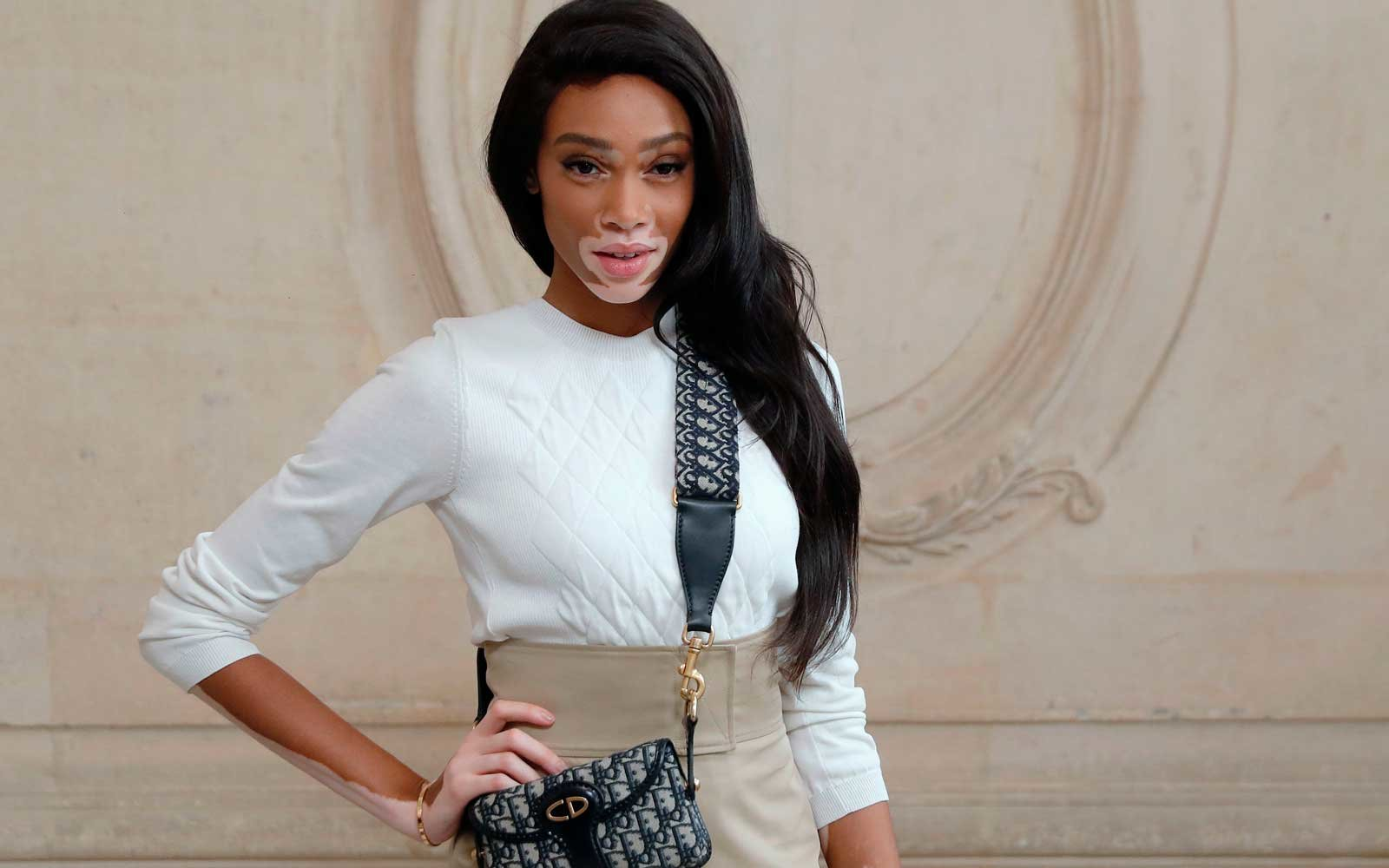 Canadian Model, Winnie Harlow