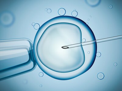 IVF: What to Know If You're Considering In Vitro