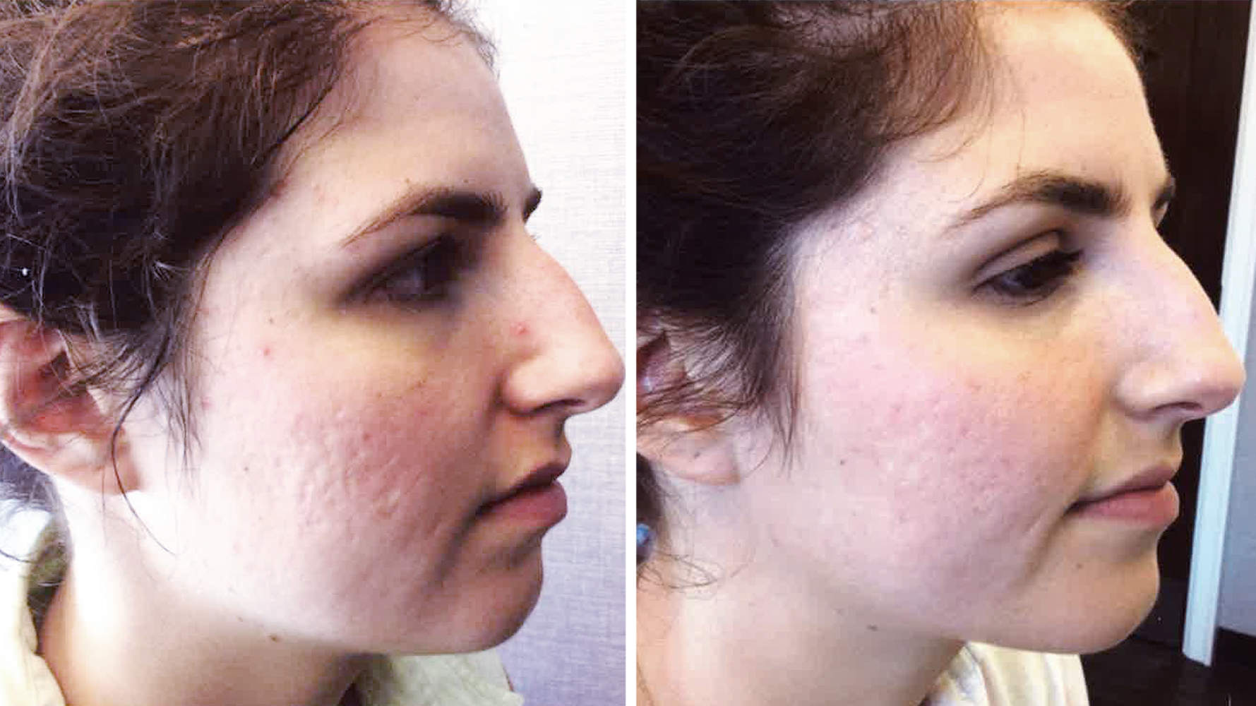 rebecca-snow-laser-before-after