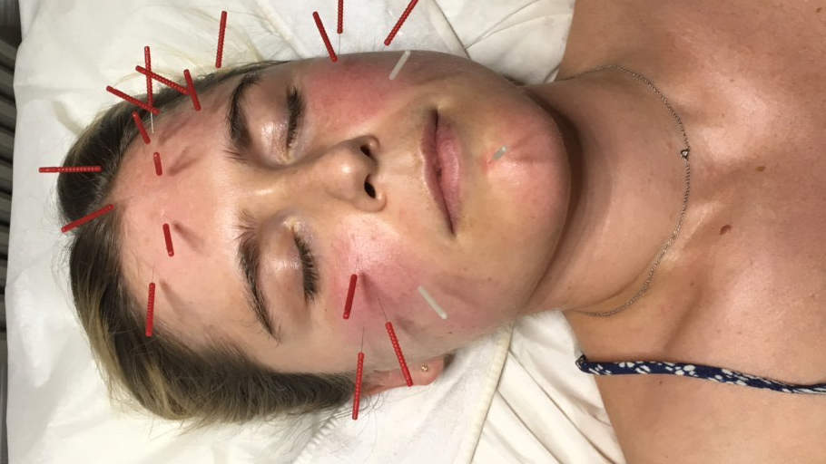 acupuncture face chelsea burns