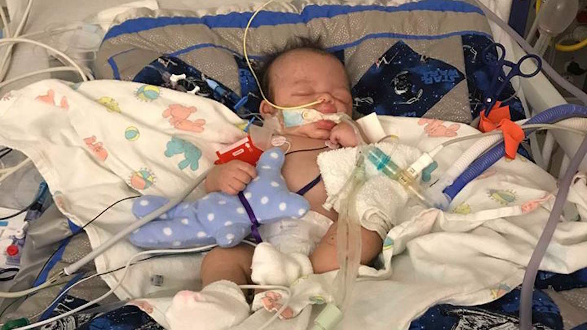 Mom's Heartbreaking Story of Her Son Suffering From Shaken Baby Syndrome Is Going Viral