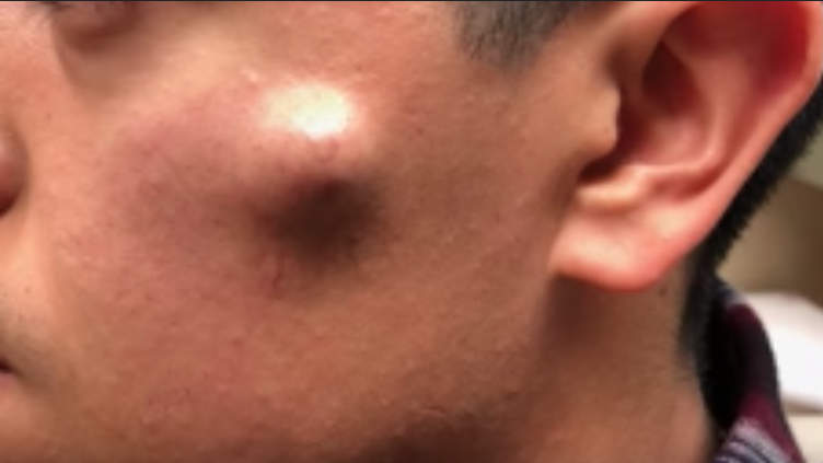 Image of man's face cyst