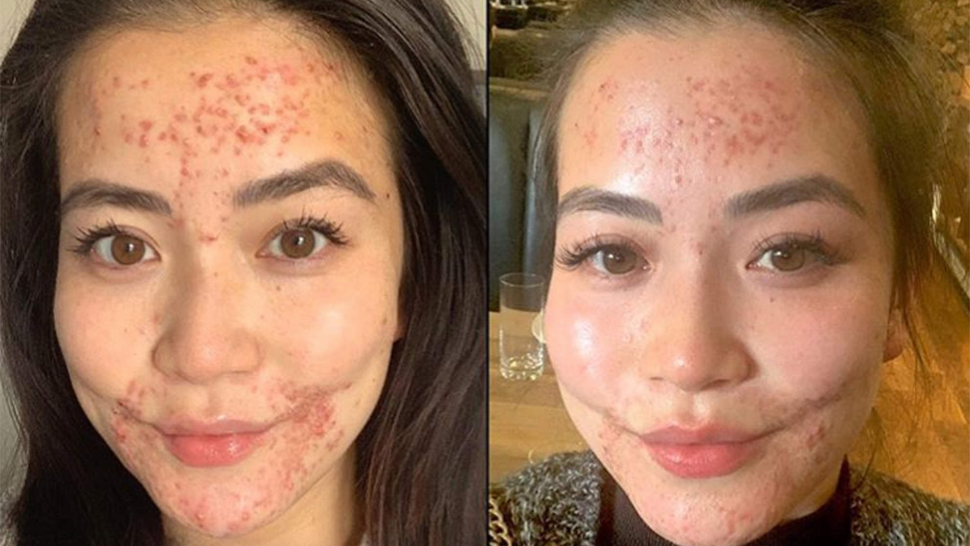 Frances Wang skin condition