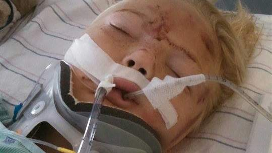 Mom Posts Urgent Warning After Seat Belt Severely Injures Her 6-Year-Old