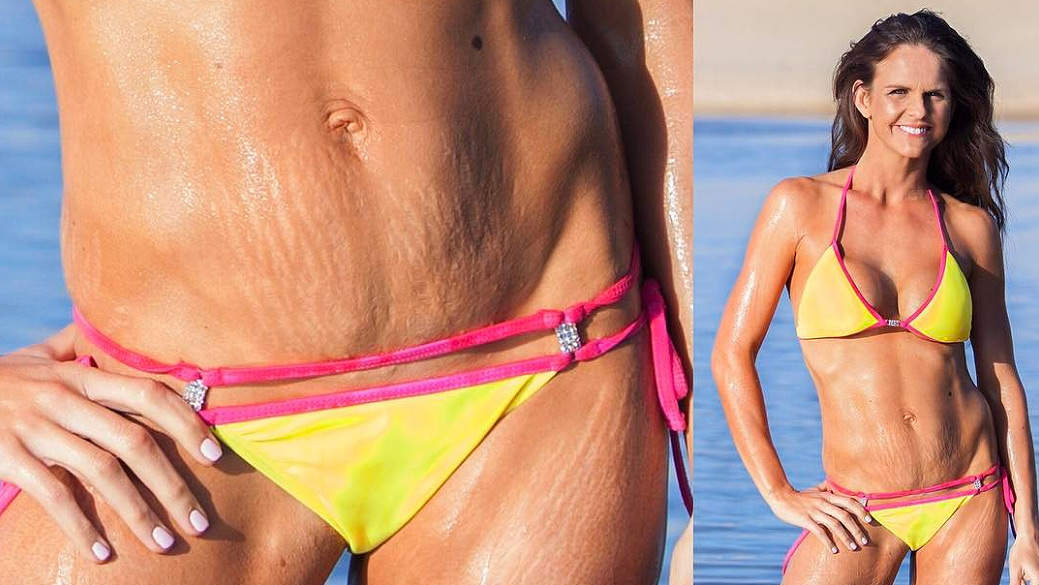 Fit Mom Explains How Her Husband Helped Her Love Her Stretch Marks