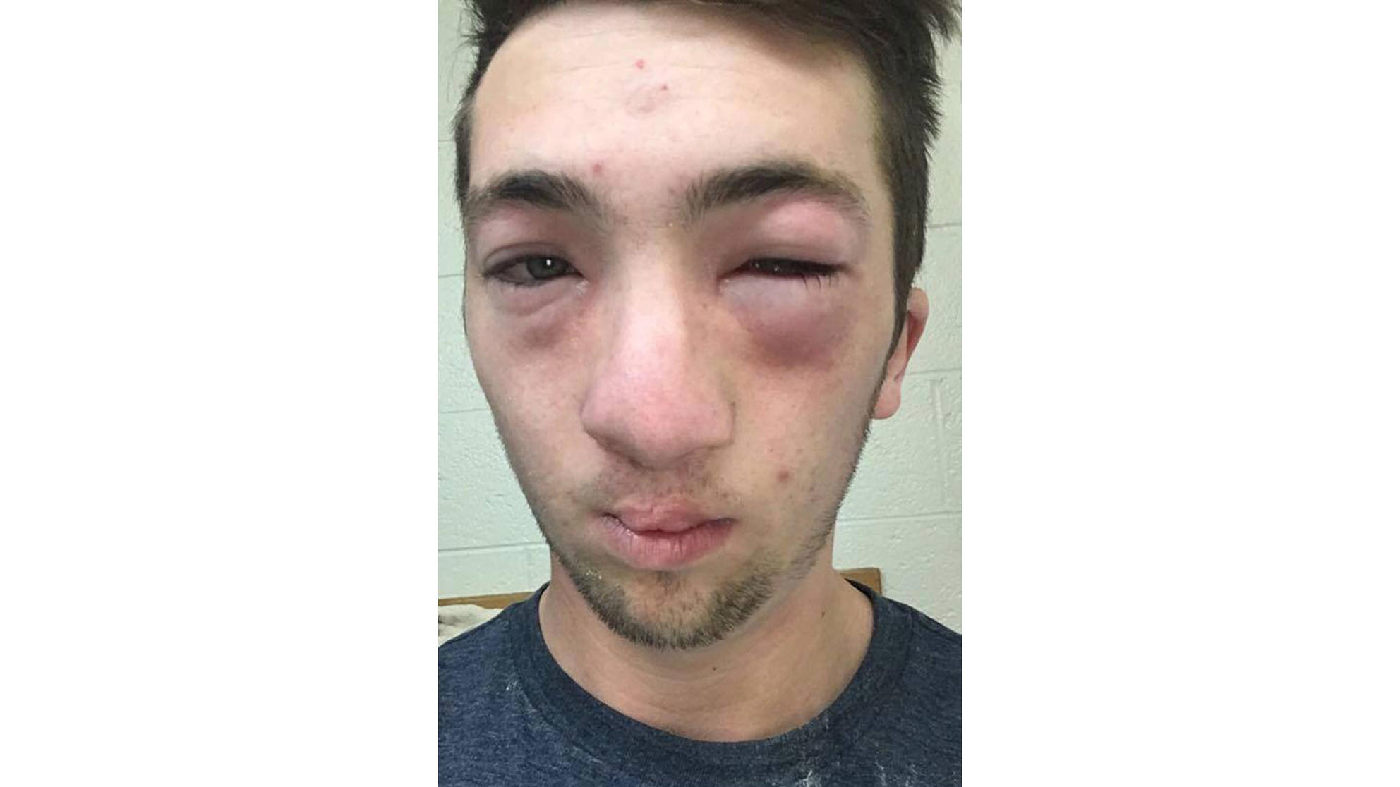 College Student with Severe Allergy Allegedly Hazed with Peanut Butter: 'He Could Have Been Killed'