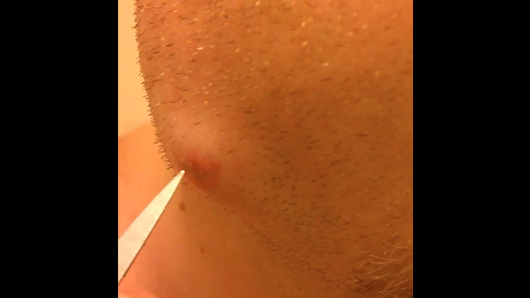 Image of Jeremie Ramey popping his tooth abscess