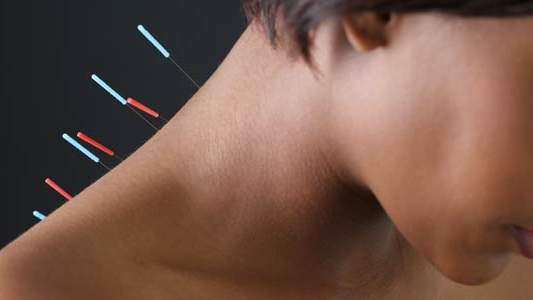 about-acupuncture-620.jpg