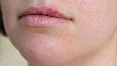Everything You Think You Know About Herpes Is Wrong - Health