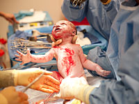 baby-delivery-surgery