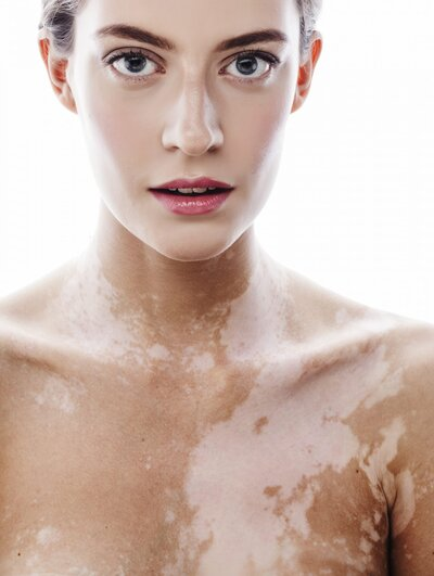 I Have Vitiligo  Here's What It's Like to Live With This