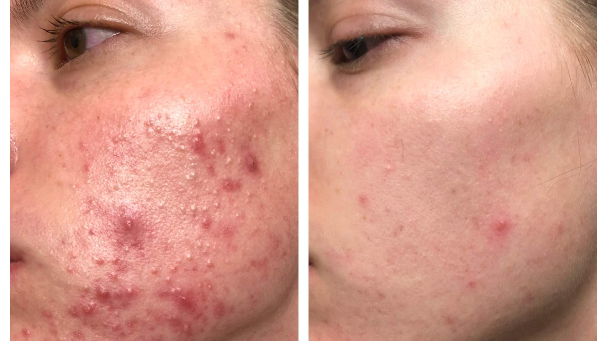 The Skincare Products That Helped Clear This Woman S Acne Health Com