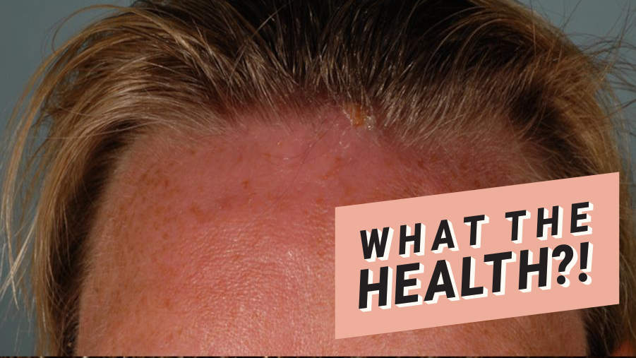 maggot forhead rash infection what the health