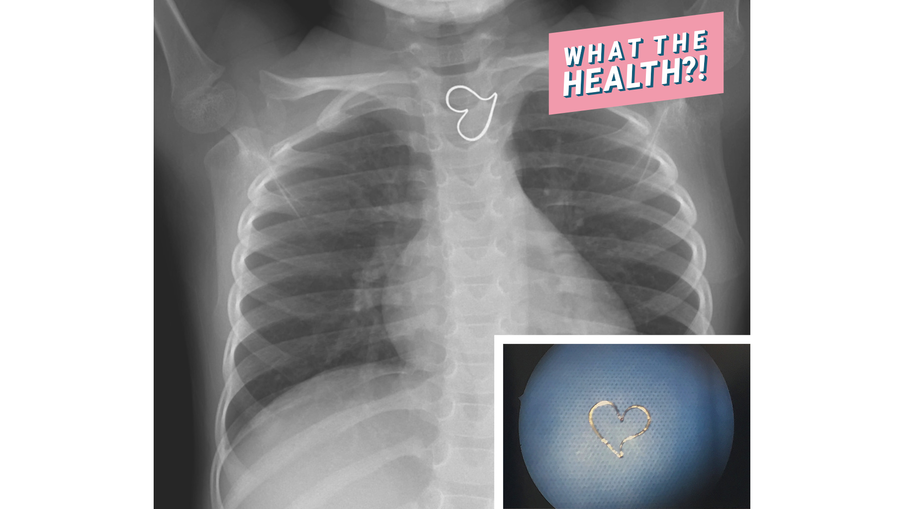x-ray heart medical doctor hospital found woman health
