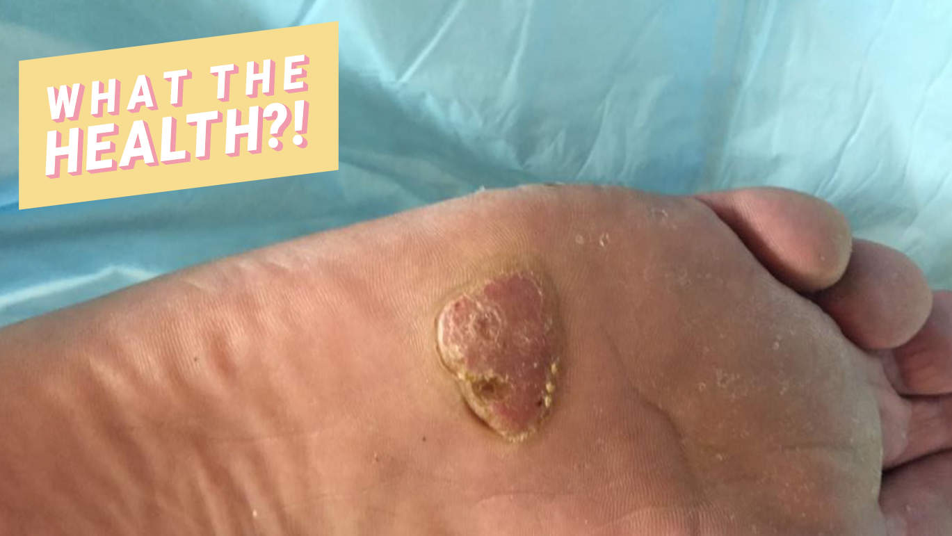 melanoma-foot-wth