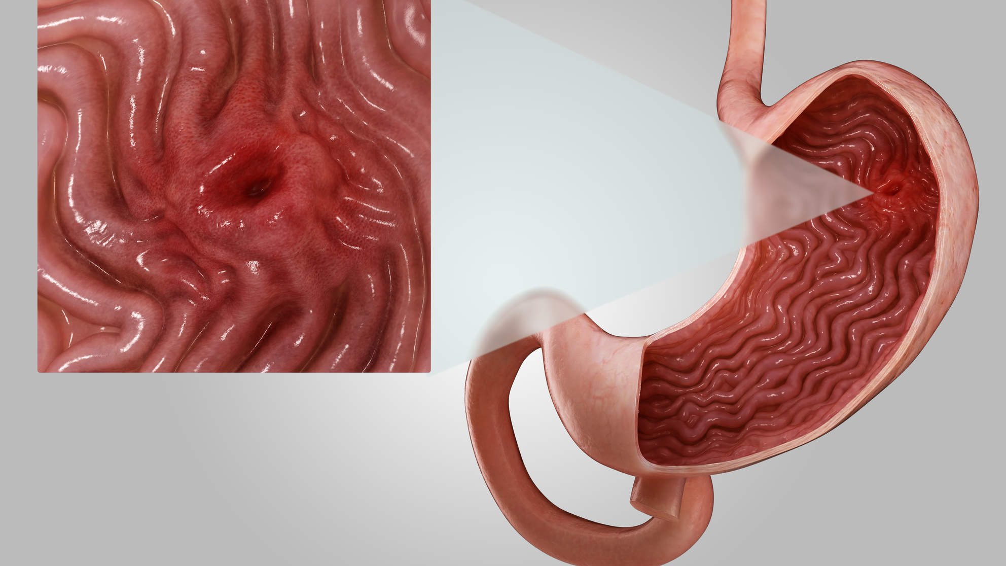 stomach-ulcers