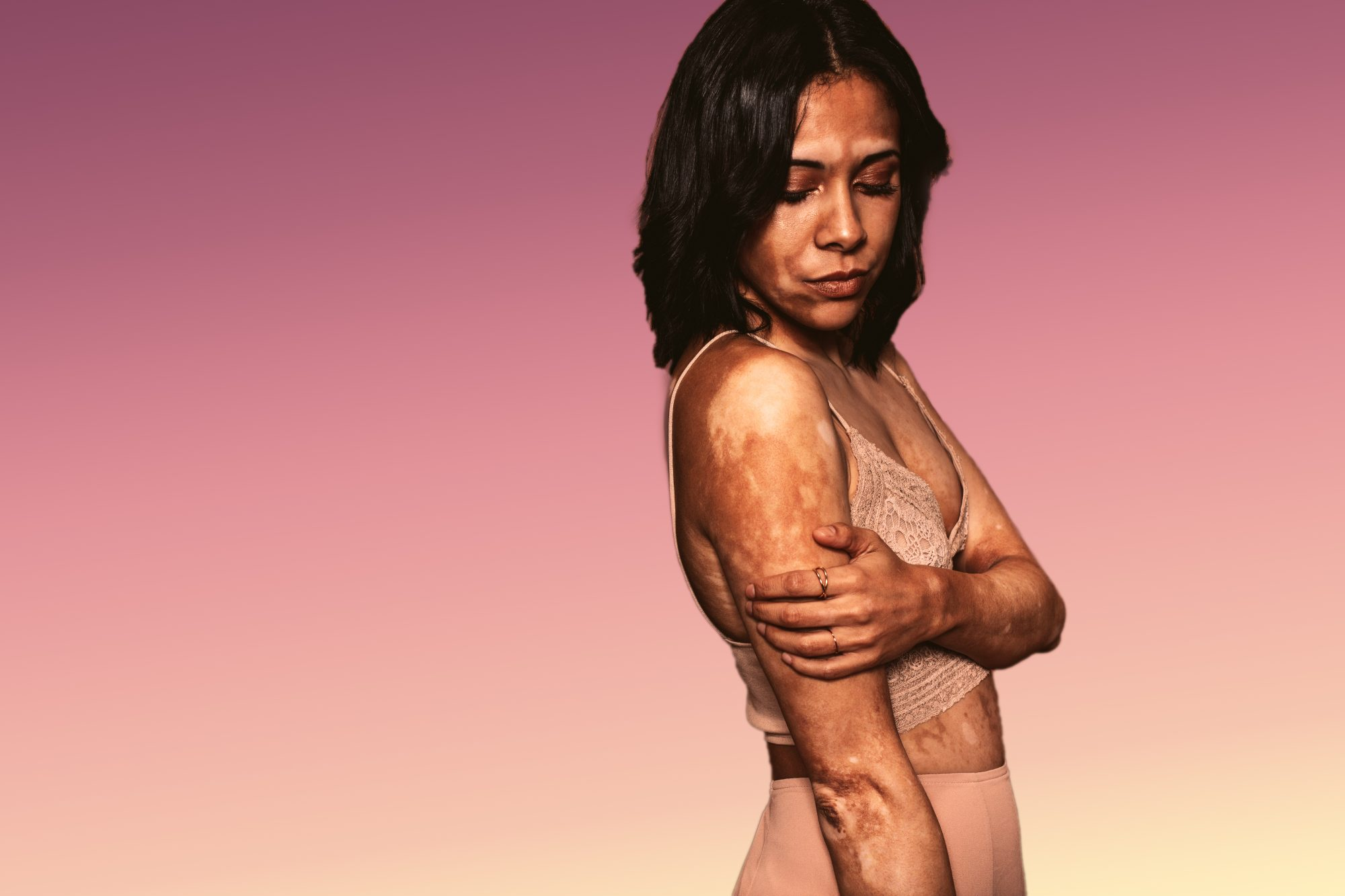 vitiligo skin condition health woman women