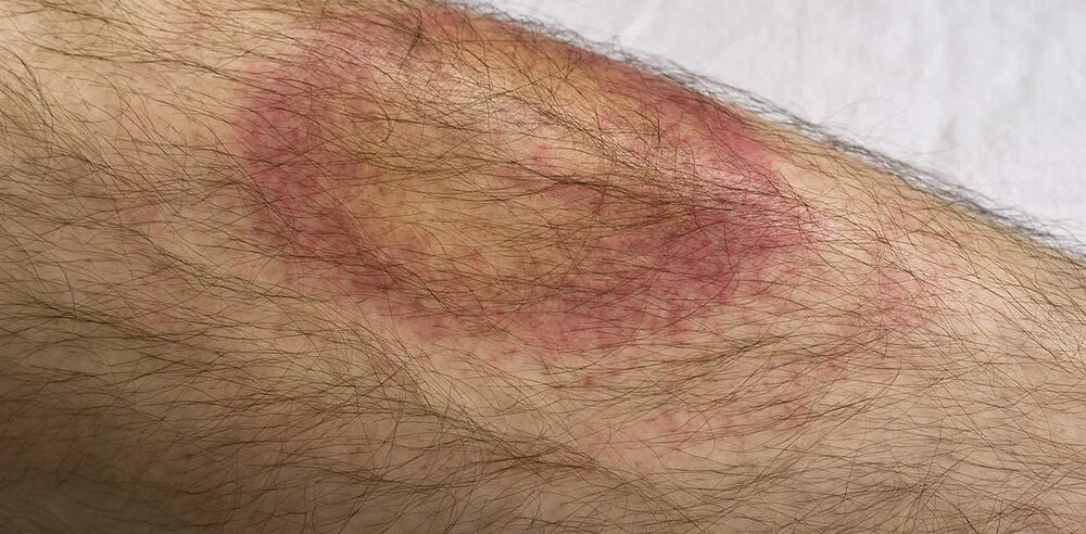 Lyme Disease: Overview, Symptoms, and Treatment | Health