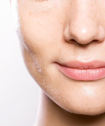 If You Are Experiencing Cystic Acne, This Is What You Need to Do