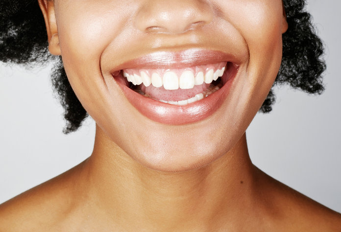 Tooth Whitening - Lead