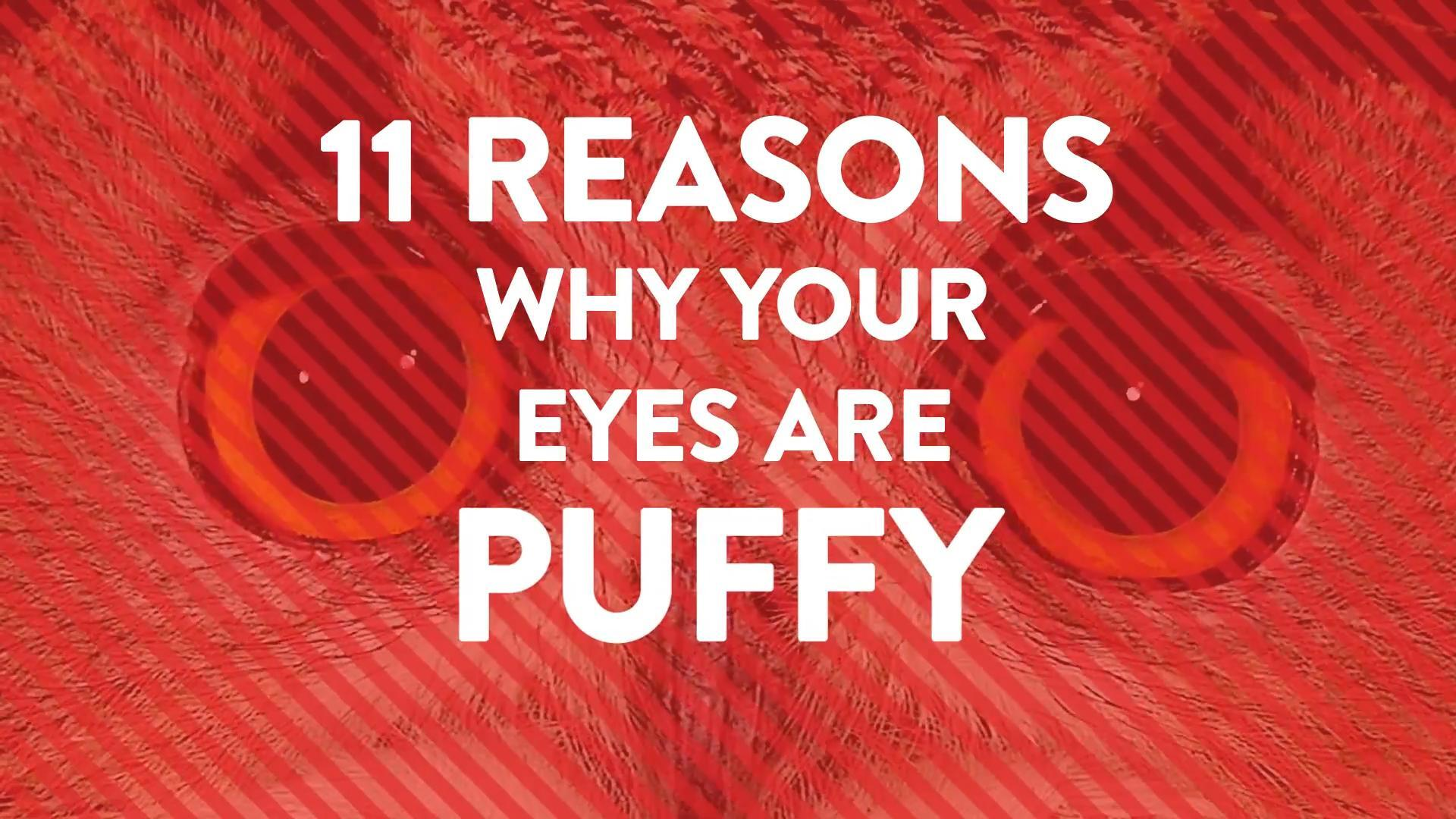 Why do you have puffy eyes?