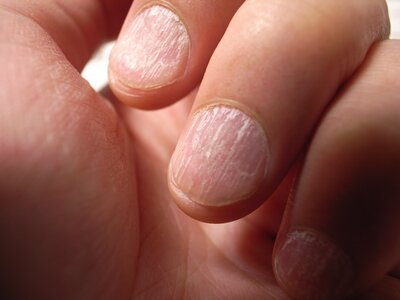 What these common nail problems could be telling you about your ...