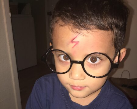 e42af3bd80b This mom magically turned her son s scar into Harry Potter s ...
