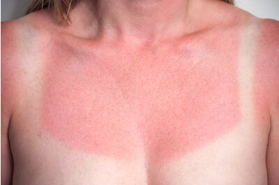 f6ca2a4049d 13 myths about skin cancer  amp  sunscreen you should stop believing ...