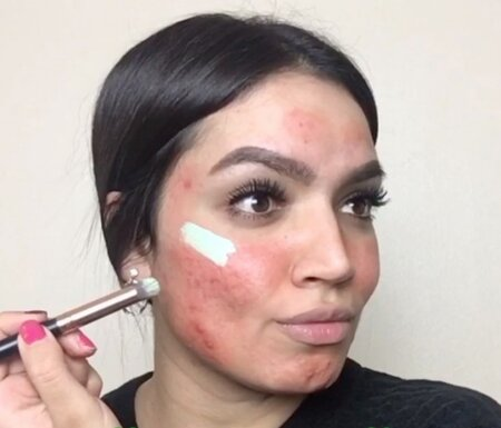 Instagram is having a tantrum over this severe acne-covering makeup tutorial