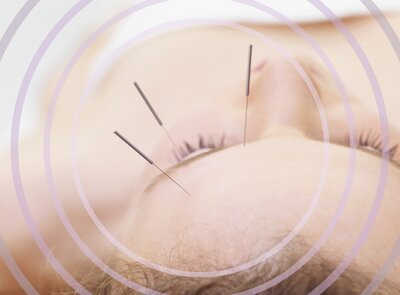 What Happens When You Regularly Get Acupuncture - HelloGiggles