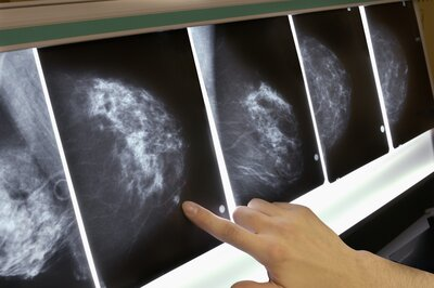 26 Breast Cancer Myths That Experts Want You To Stop