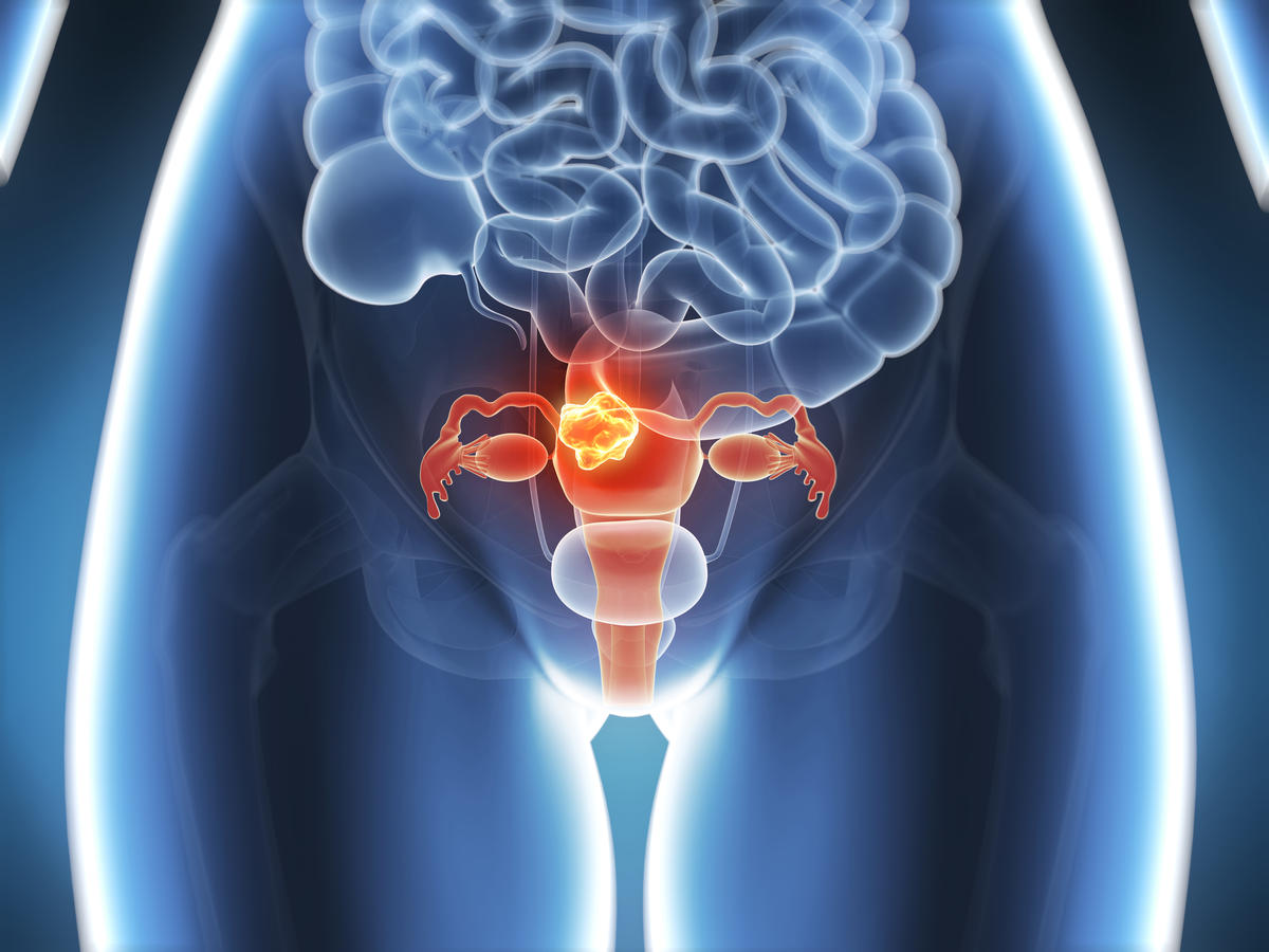 04-endometrial-cancer-weight