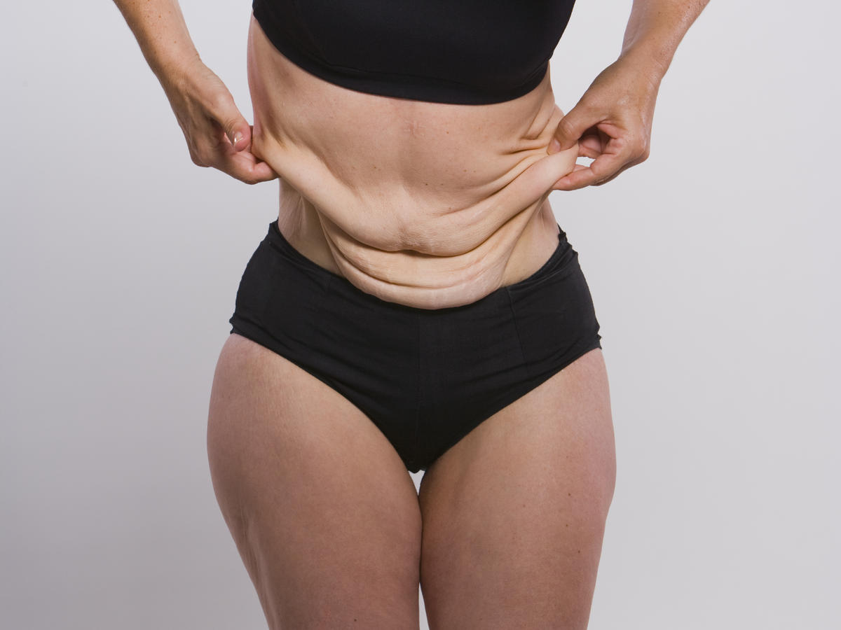 Woman with extra skin after losing weight