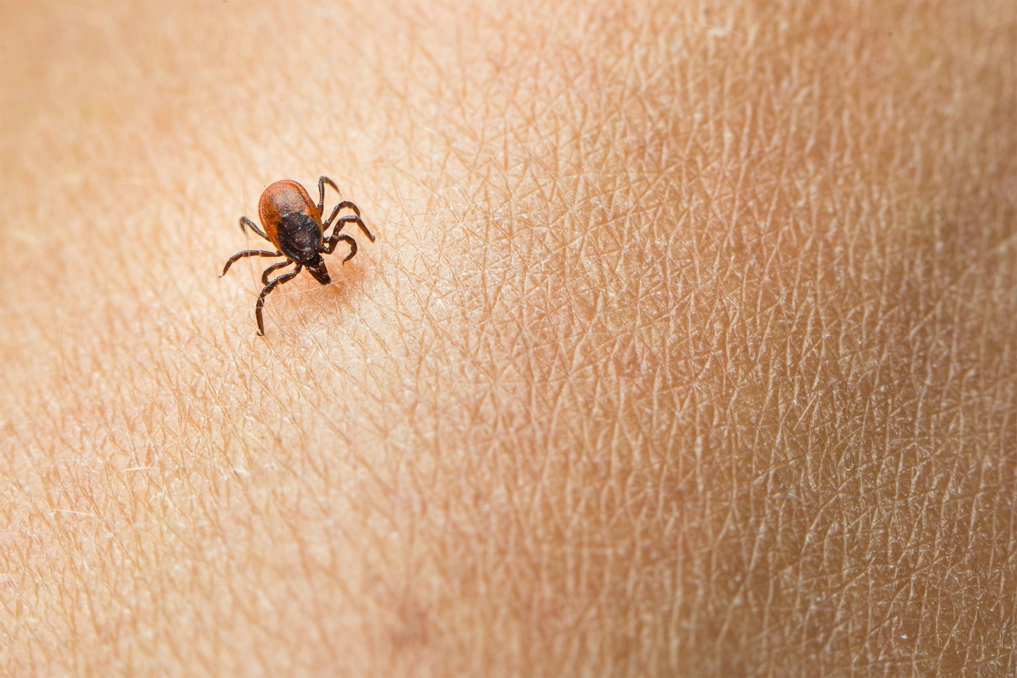 Kentucky Man With Eye 'Irritation' Learns He Has a Tick Stuck in His Eye